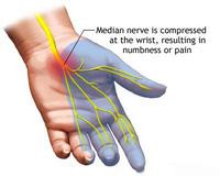 nerve pain carpal tunnel syndrome