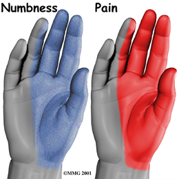 carpal tunnel common symptons
